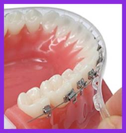 Clip On Comfort Lip Shield/Mouth Guard For Braces Better Tha