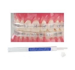 COMFORT LIP SHIELD / MOUTH GUARD - FOR BRACES - ORTHODONTIC