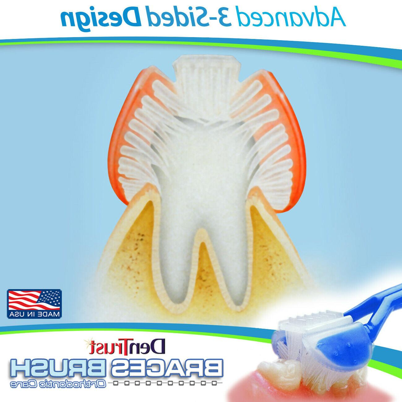 DenTrust Toothbrush :: Orthodontic Care ~ CLINICALLY PROVEN