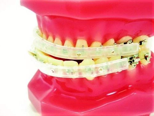 CLIP ON SHIELD COVER / GUARD ORTHODONTIC