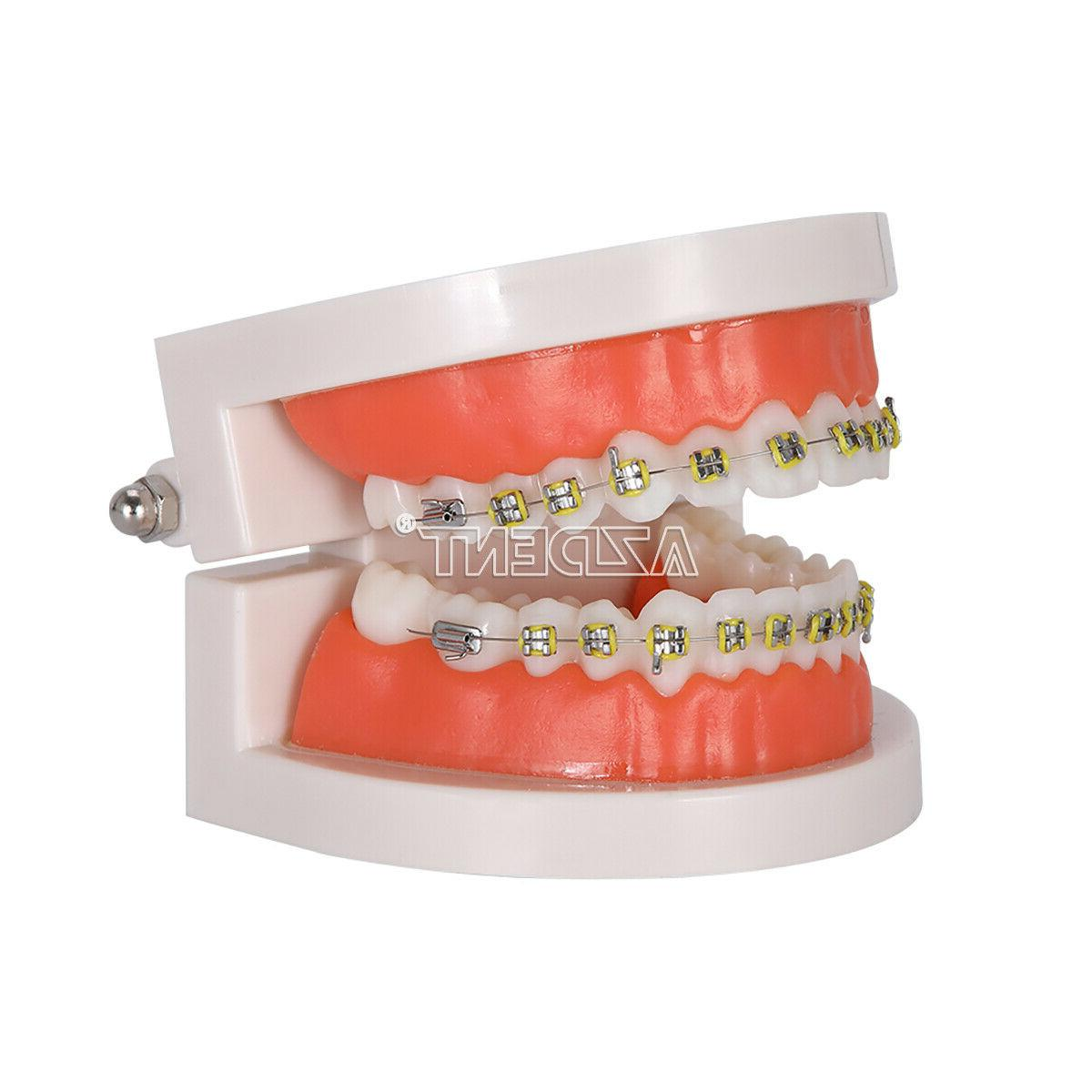 Dental Orthodontic with