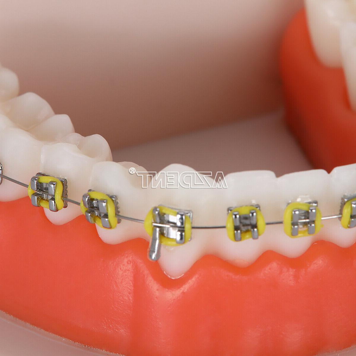 Dental Teeth with Braces for