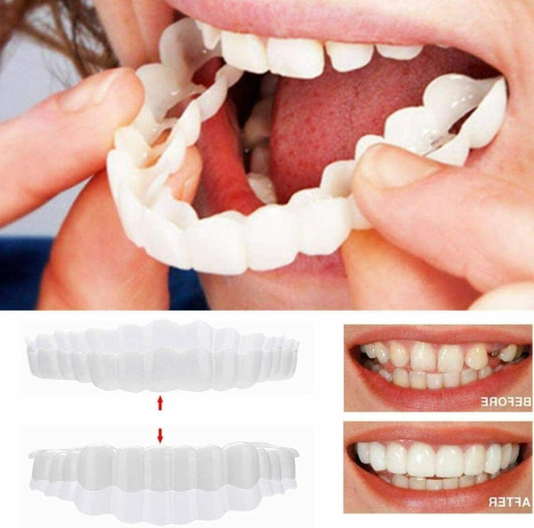 Top And Bottom Cosmetic Veneers Instant Smile Braces Snap On